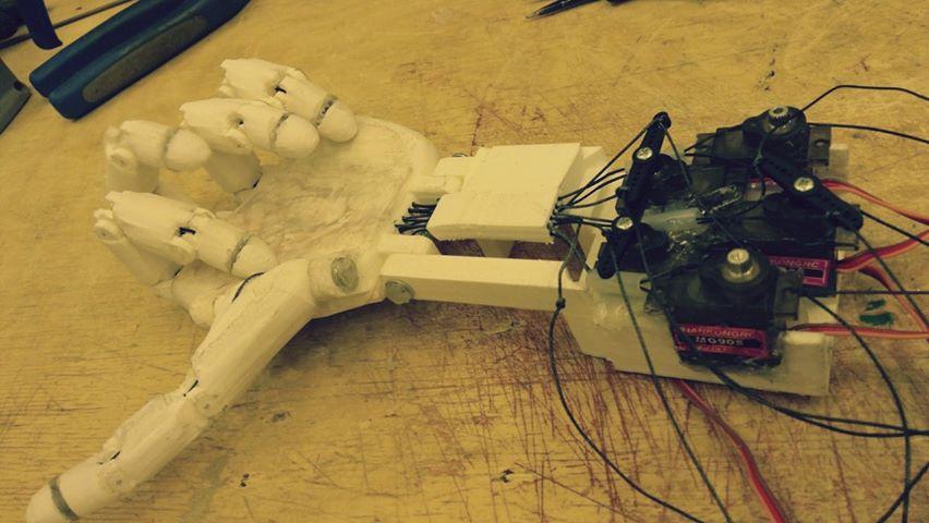 Elektroniczna proteza ręki